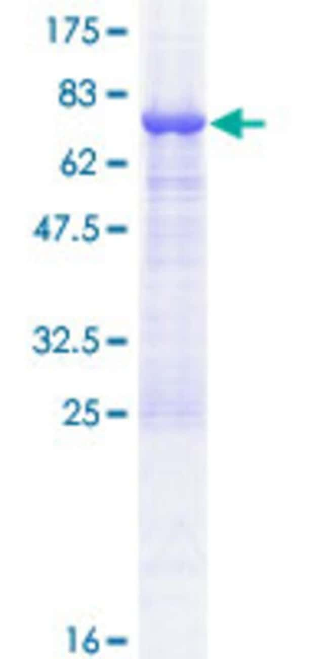 Abnova™Human TASP1 Full-length ORF (NP_060184.2, 1 a.a. - 420 a.a.) Recombinant Protein with GST-tag at N-terminal 10μg Abnova™Human TASP1 Full-length ORF (NP_060184.2, 1 a.a. - 420 a.a.) Recombinant Protein with GST-tag at N-terminal