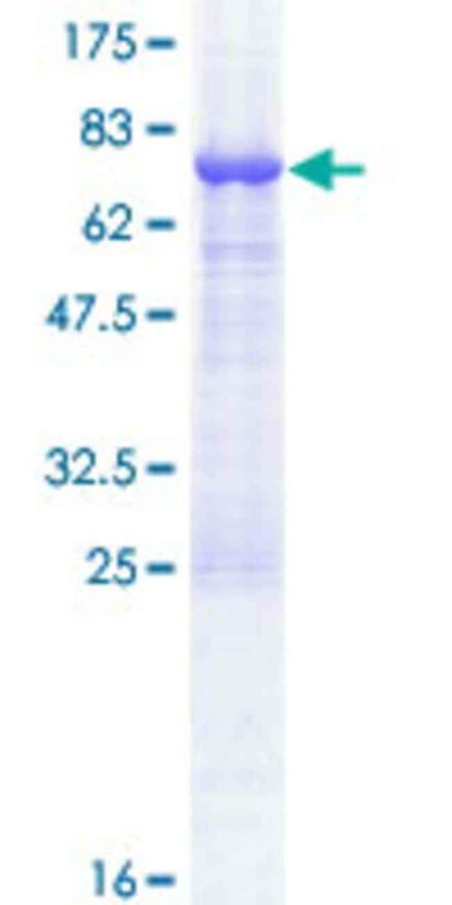 AbnovaHuman TASP1 Full-length ORF (NP_060184.2, 1 a.a. - 420 a.a.) Recombinant