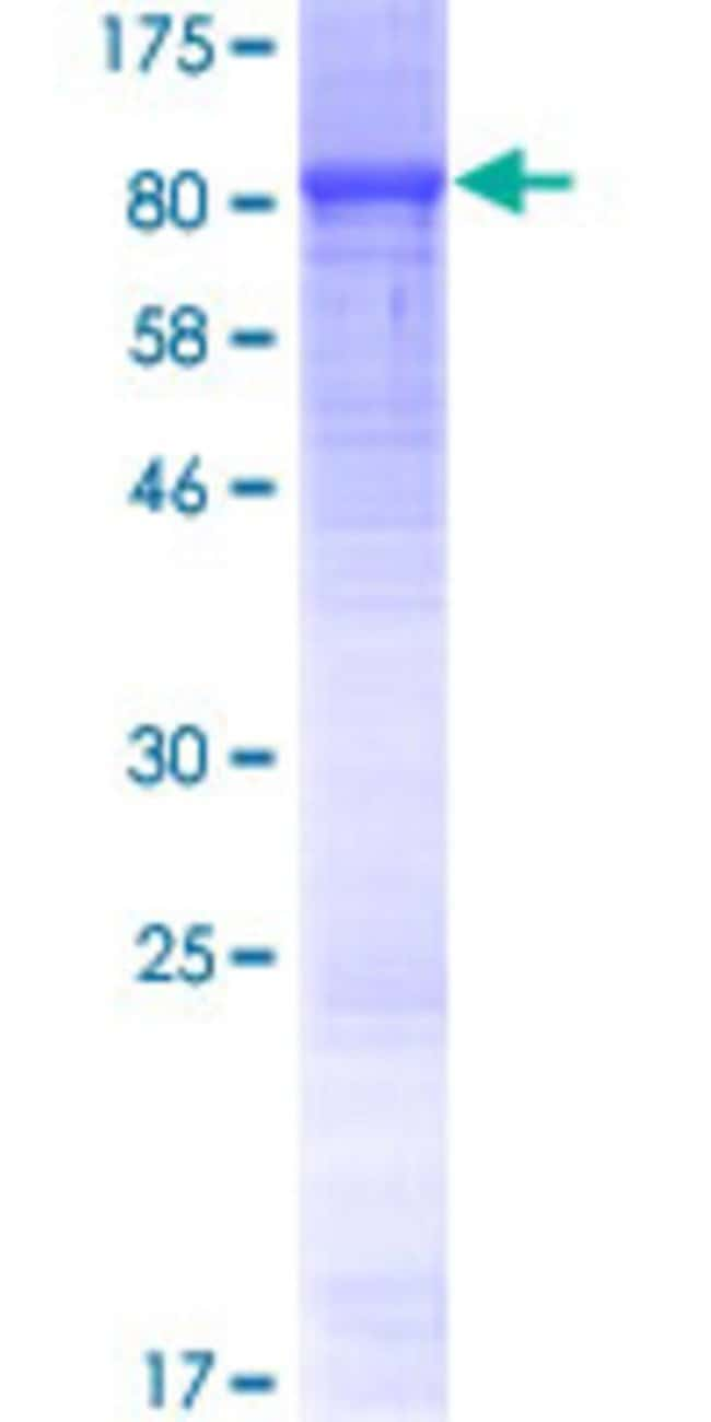 AbnovaHuman LRRC40 Full-length ORF (NP_060238.3, 1 a.a. - 602 a.a.) Recombinant