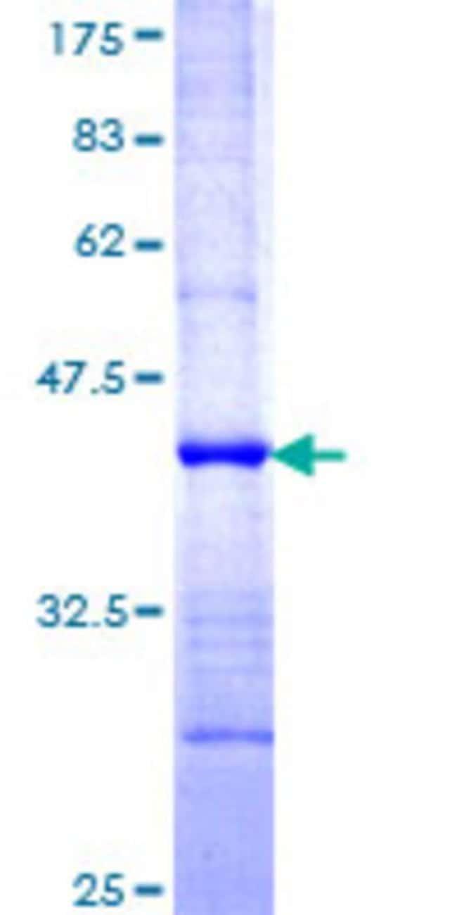 AbnovaHuman KIAA1333 Partial ORF (NP_060239, 2 a.a. - 100 a.a.) Recombinant