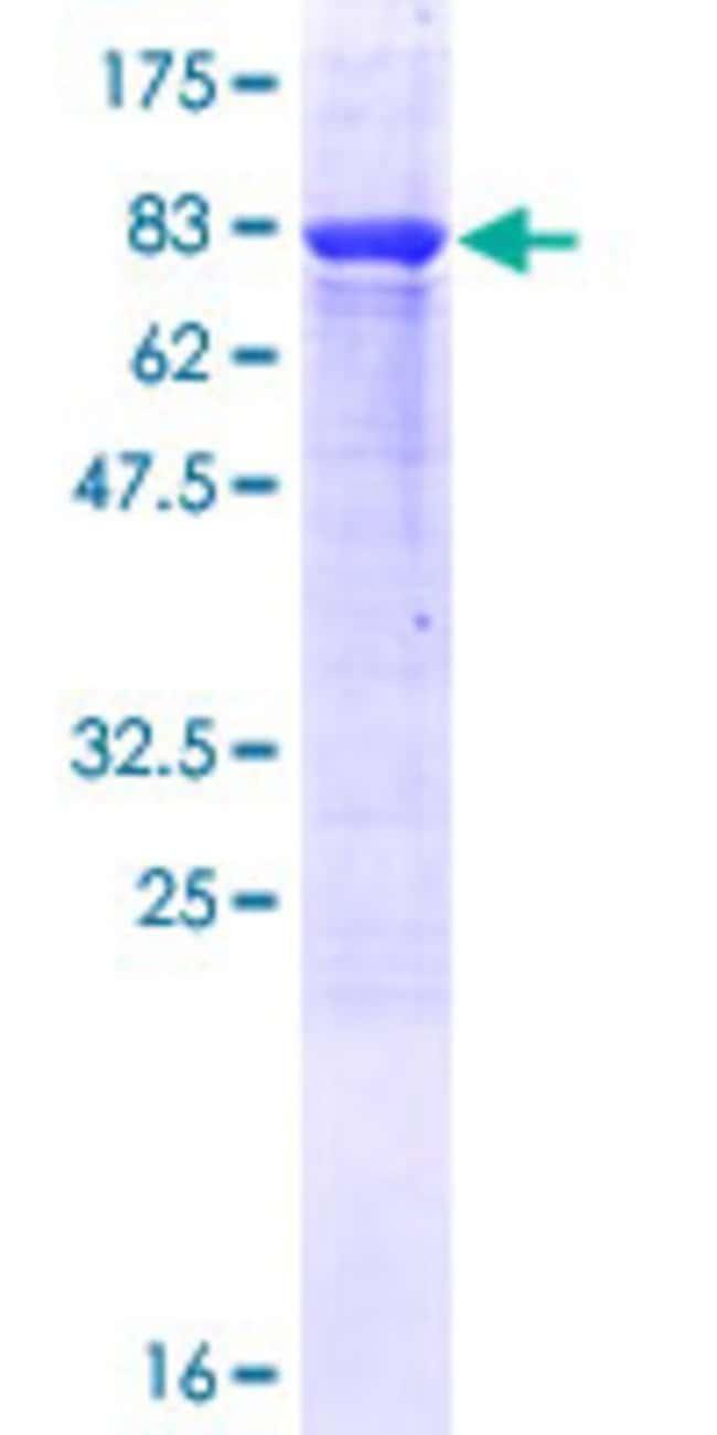 AbnovaHuman TBC1D22B Full-length ORF (NP_060242.2, 1 a.a. - 505 a.a.) Recombinant