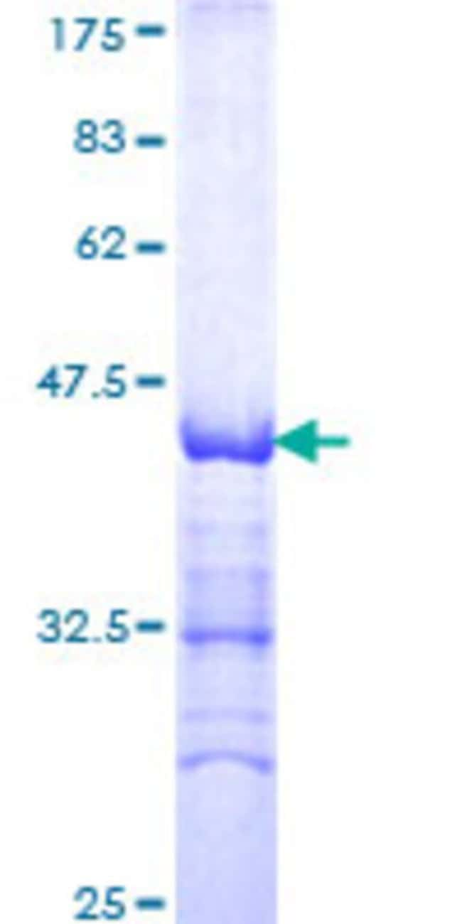 AbnovaHuman DEPDC1 Partial ORF (NP_060249, 93 a.a. - 186 a.a.) Recombinant