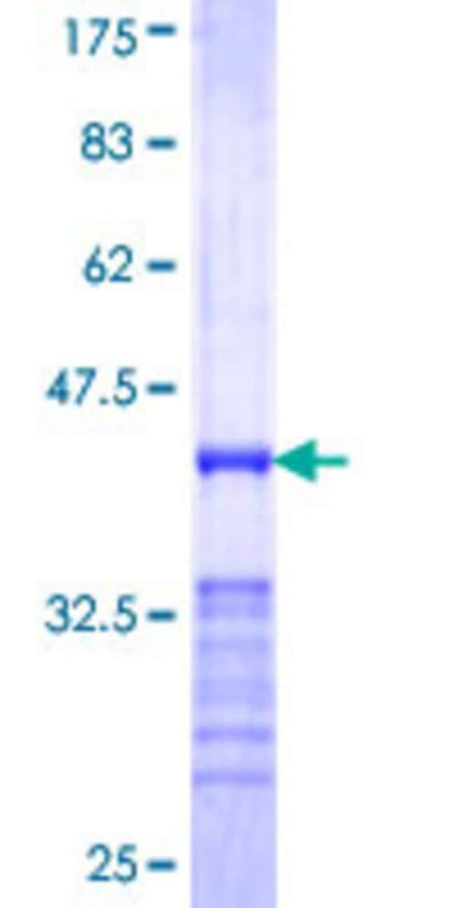 AbnovaHuman RAB20 Partial ORF (NP_060287, 135 a.a. - 234 a.a.) Recombinant