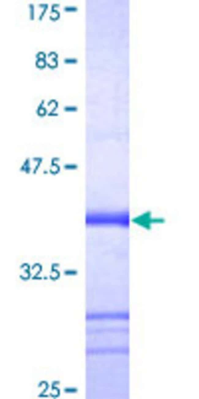 AbnovaHuman NLRP2 Partial ORF (AAH01039, 1 a.a. - 110 a.a.) Recombinant