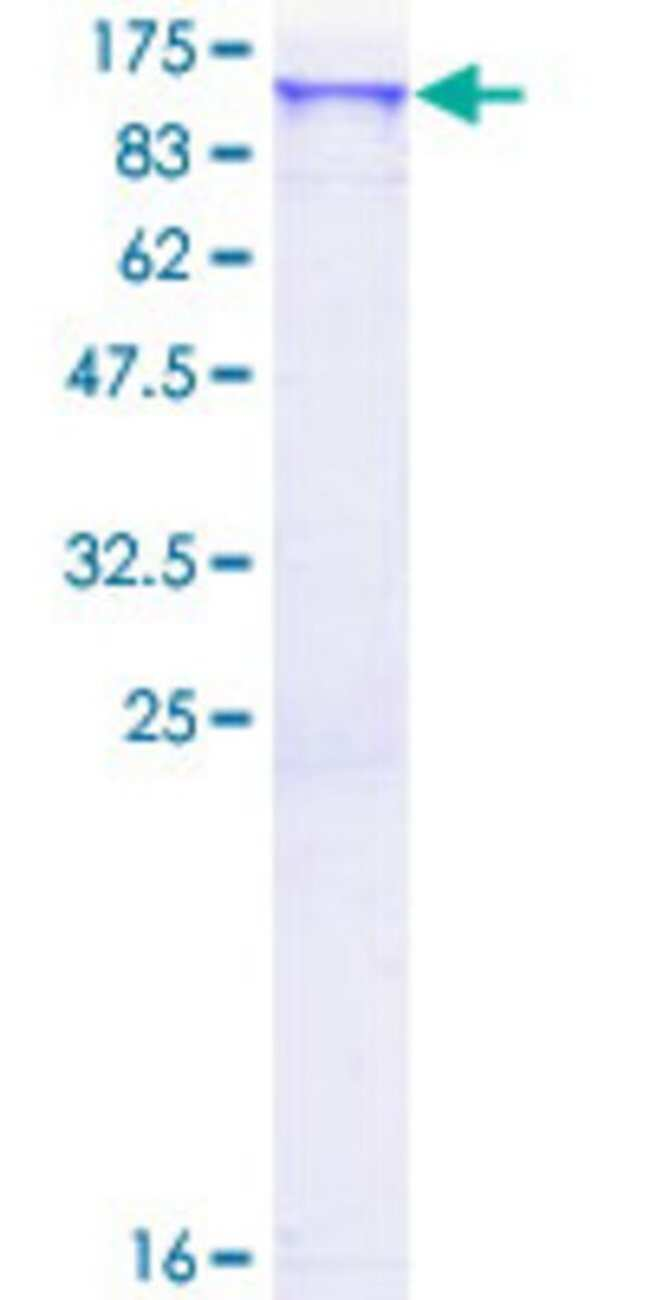 Abnova™Human SCYL2 Full-length ORF (NP_060458.3, 1 a.a. - 929 a.a.) Recombinant Protein with GST-tag at N-terminal 10μg Abnova™Human SCYL2 Full-length ORF (NP_060458.3, 1 a.a. - 929 a.a.) Recombinant Protein with GST-tag at N-terminal