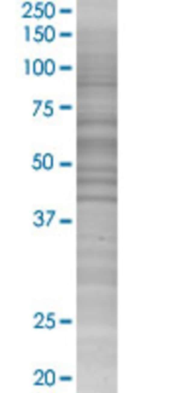 Abnova JMJD2D 293T Cell Transient Overexpression Lysate (Denatured) 100µL:Life