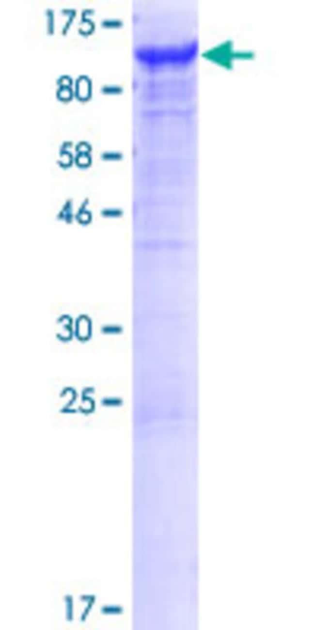 AbnovaHuman VAC14 Full-length ORF (NP_060522.3, 1 a.a. - 782 a.a.) Recombinant