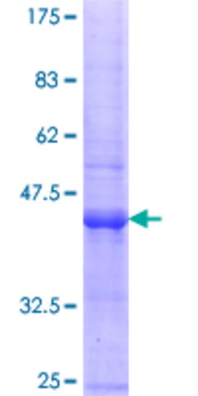 Abnova™Human POLR3B Partial ORF (NP_060552.3, 2 a.a. - 100 a.a.) Recombinant Protein with GST-tag at N-terminal 10μg Abnova™Human POLR3B Partial ORF (NP_060552.3, 2 a.a. - 100 a.a.) Recombinant Protein with GST-tag at N-terminal