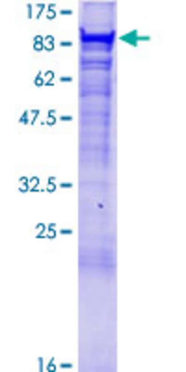 AbnovaHuman VPS35 Full-length ORF (NP_060676.2, 1 a.a. - 796 a.a.) Recombinant