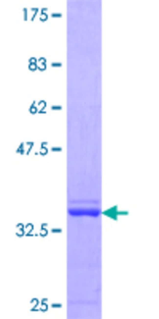 AbnovaHuman CHFR Partial ORF (AAH12072.1, 136 a.a. - 194 a.a.) Recombinant