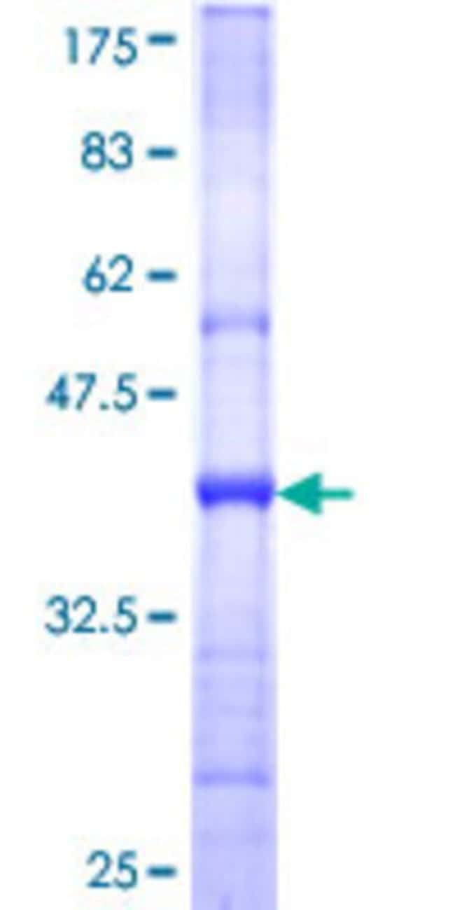 Abnova™Human CNDP2 Partial ORF (NP_060705, 191 a.a. - 300 a.a.) Recombinant Protein with GST-tag at N-terminal 10μg Abnova™Human CNDP2 Partial ORF (NP_060705, 191 a.a. - 300 a.a.) Recombinant Protein with GST-tag at N-terminal