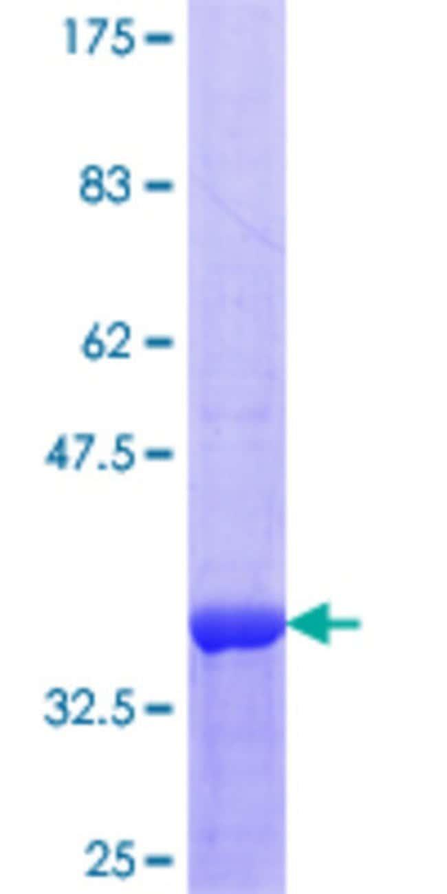 AbnovaHuman MULK Partial ORF (NP_060708.1, 31 a.a. - 125 a.a.) Recombinant