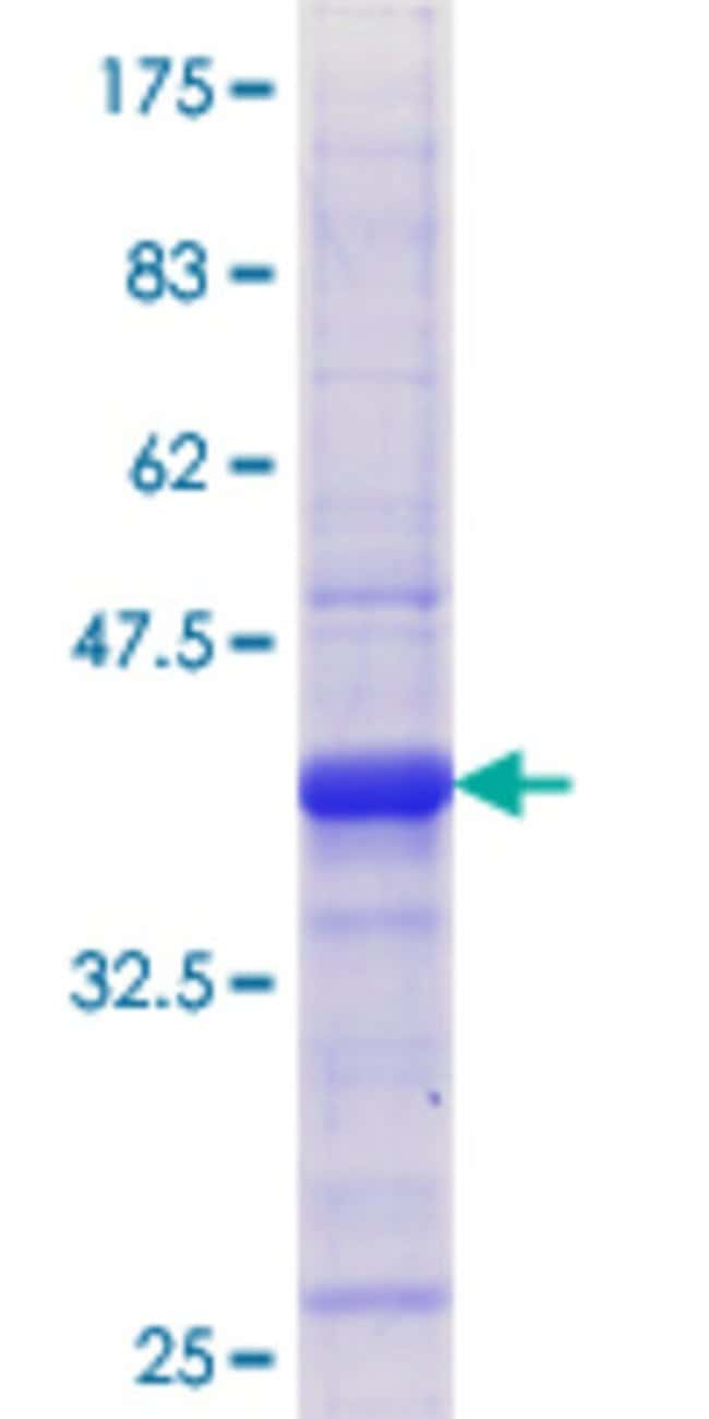 Abnova™Human TDP1 Partial ORF (AAH15474.1, 121 a.a. - 218 a.a.) Recombinant Protein with GST-tag at N-terminal 25μg Abnova™Human TDP1 Partial ORF (AAH15474.1, 121 a.a. - 218 a.a.) Recombinant Protein with GST-tag at N-terminal