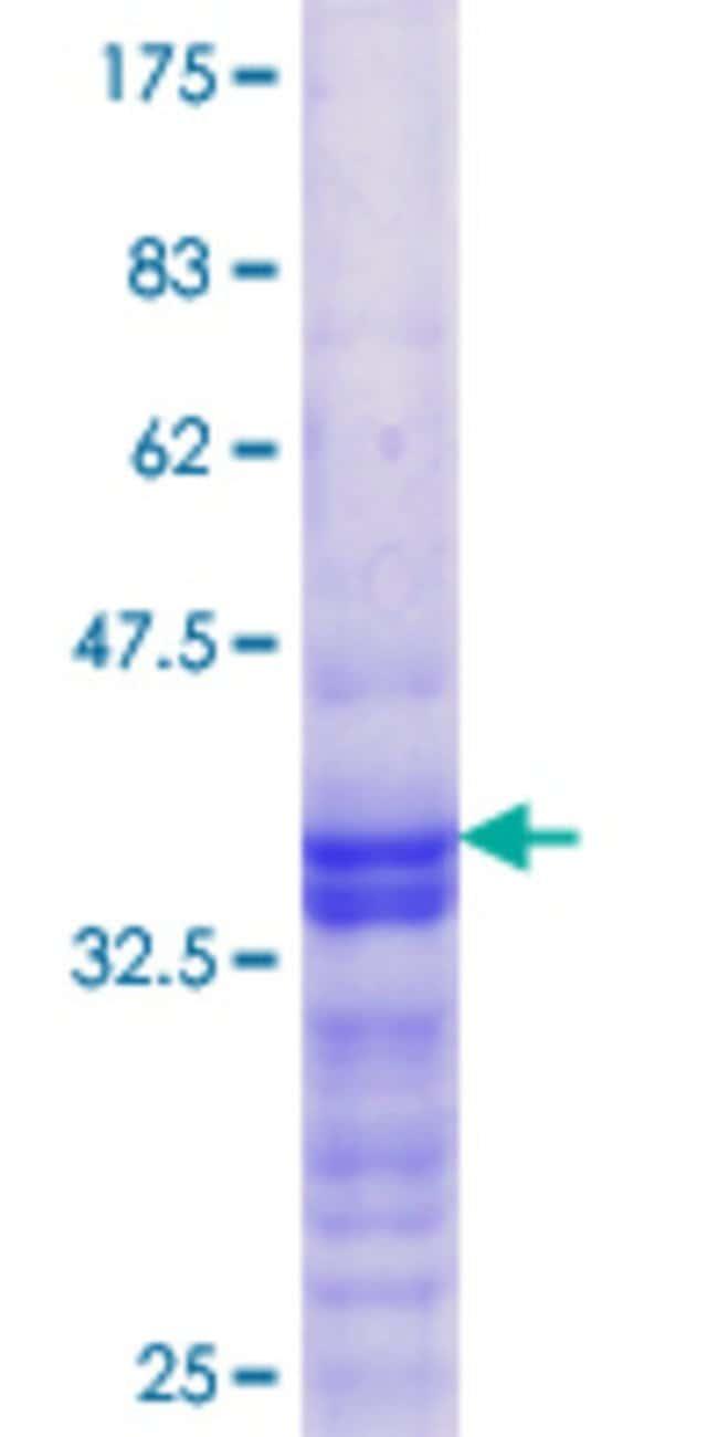 AbnovaHuman DEPDC1B Partial ORF (NP_060839.1, 430 a.a. - 529 a.a.) Recombinant