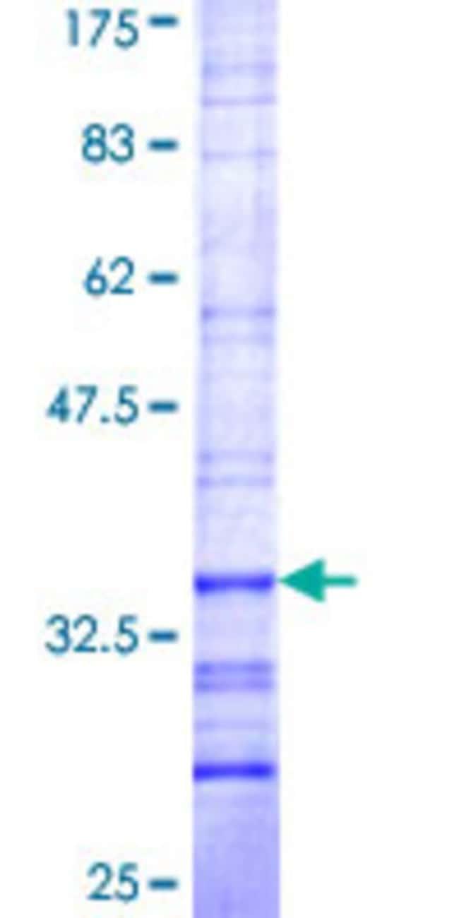 AbnovaHuman MBNL3 Partial ORF (NP_060858, 112 a.a. - 173 a.a.) Recombinant