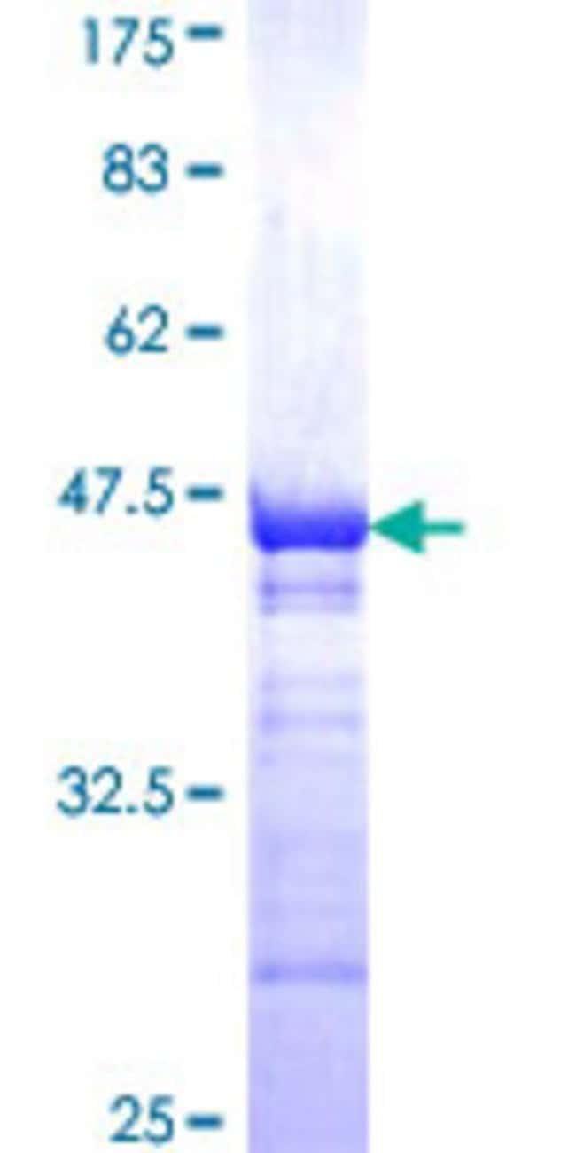 AbnovaHuman DCP1A Partial ORF (NP_060873, 186 a.a. - 285 a.a.) Recombinant