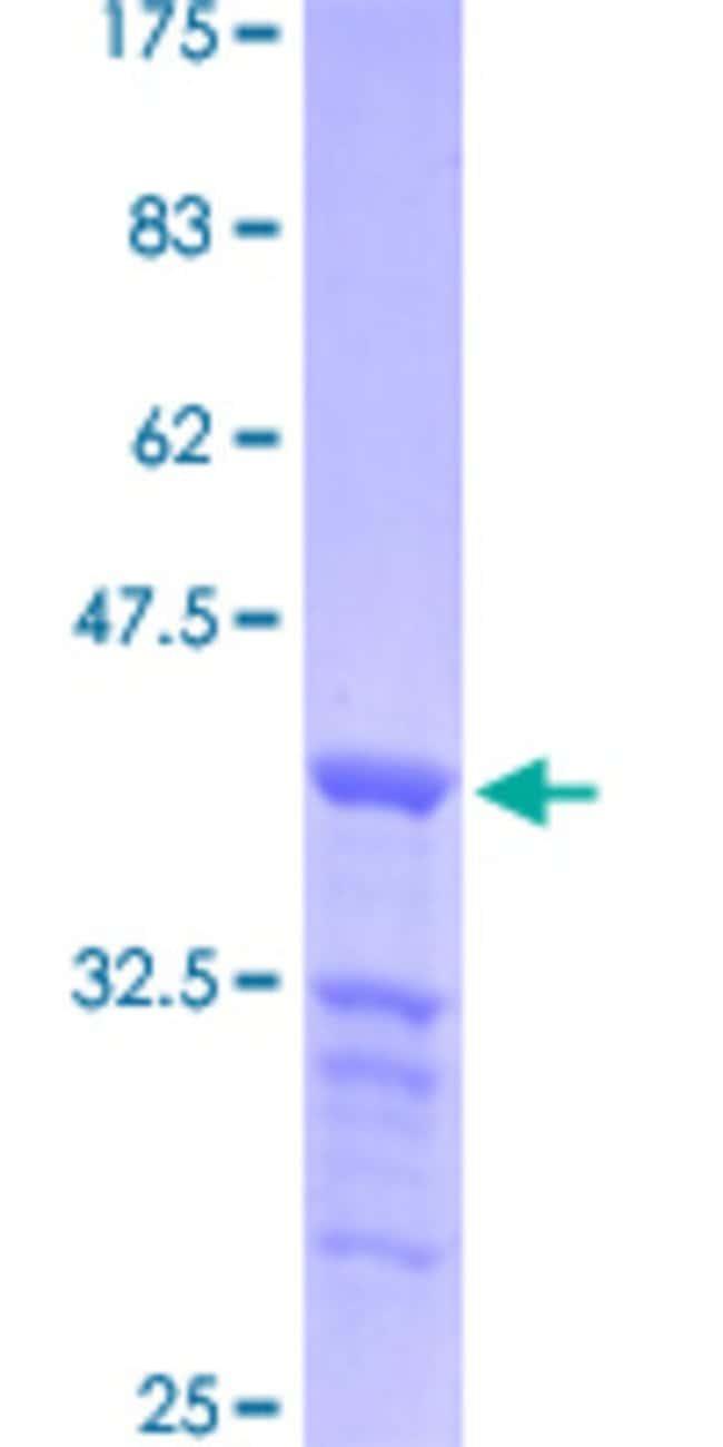 AbnovaHuman TRERF1 Partial ORF (NP_060885.1, 2 a.a. - 90 a.a.) Recombinant