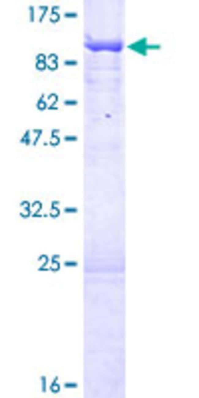 AbnovaHuman UTP6 Full-length ORF (NP_060898.2, 1 a.a. - 597 a.a.) Recombinant
