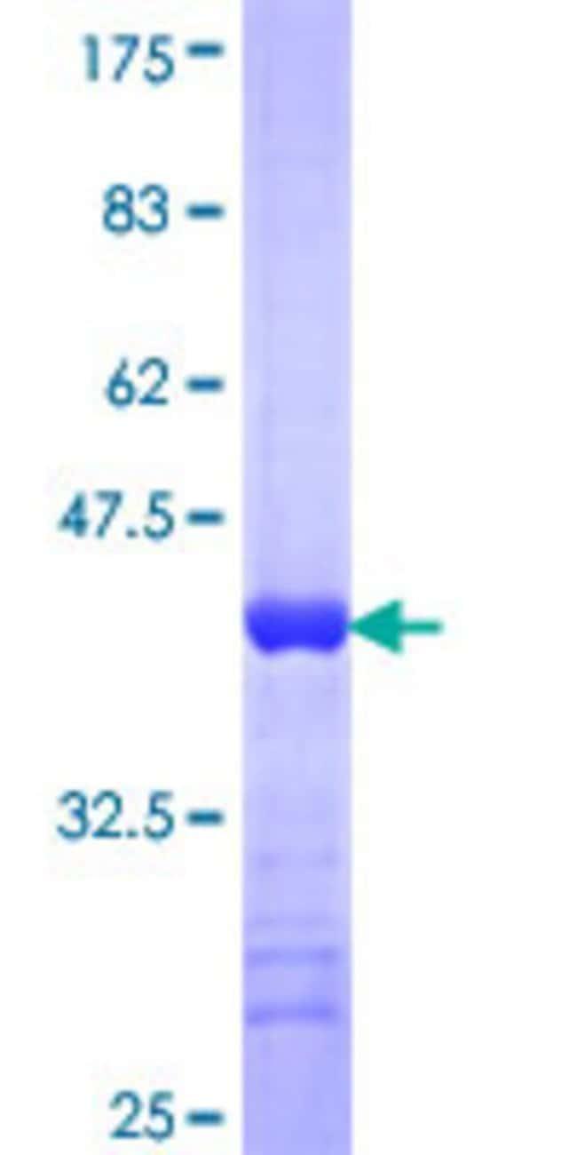 Abnova™Human TSNAXIP1 Partial ORF (NP_060900, 269 a.a. - 364 a.a.) Recombinant Protein with GST-tag at N-terminal 10μg Abnova™Human TSNAXIP1 Partial ORF (NP_060900, 269 a.a. - 364 a.a.) Recombinant Protein with GST-tag at N-terminal