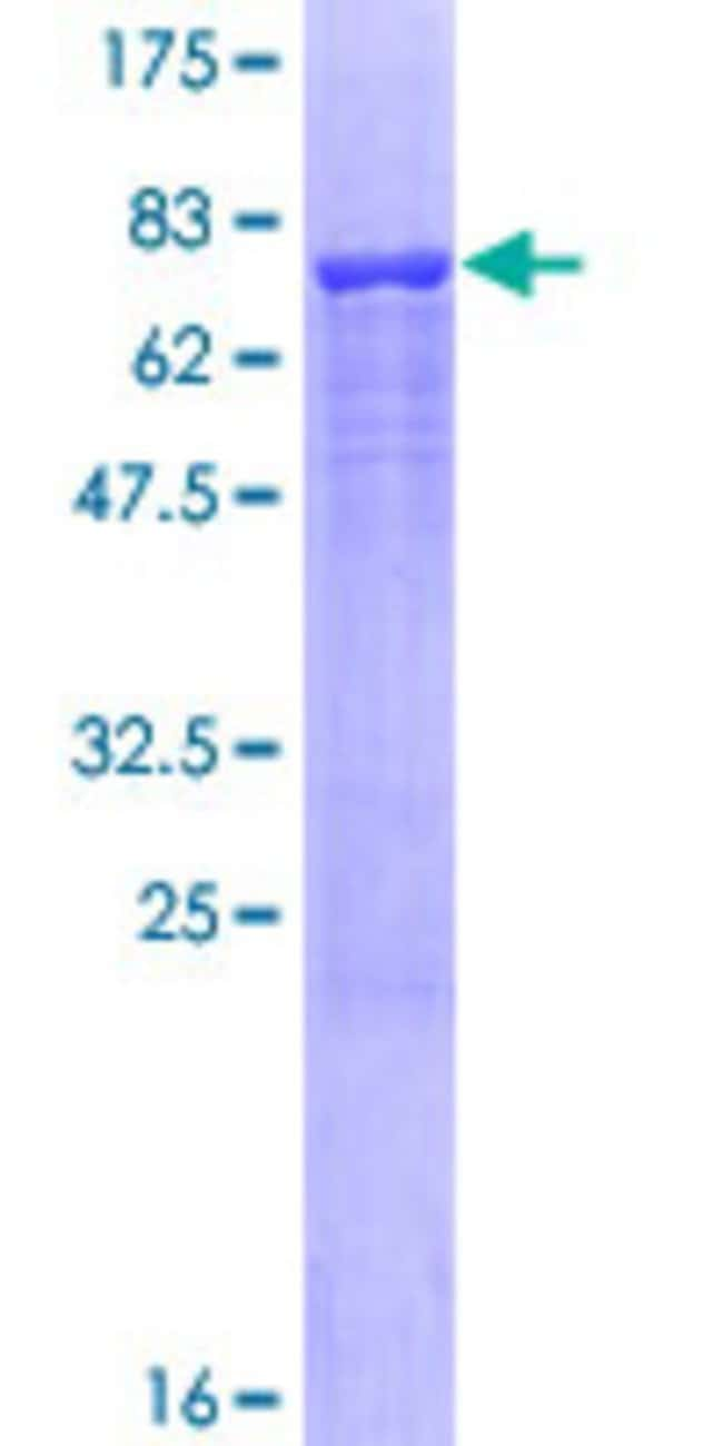 AbnovaHuman ALLC Full-length ORF (AAH29652.1, 1 a.a. - 409 a.a.) Recombinant