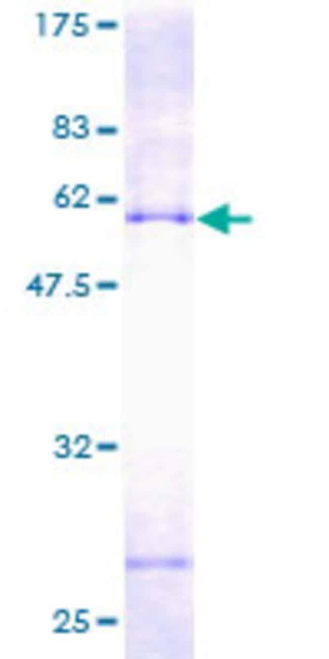 AbnovaHuman PECR Full-length ORF (AAH02529, 1 a.a. - 303 a.a.) Recombinant