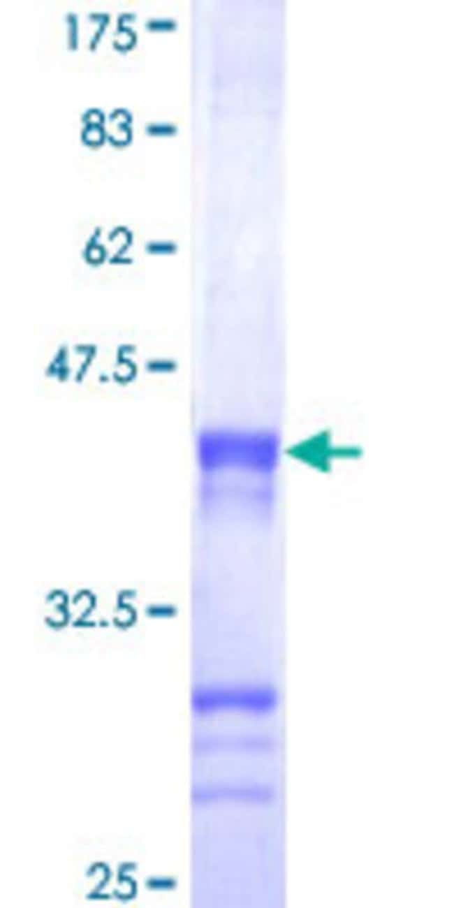 Abnova™ Human CENPJ Partial ORF (NP_060921, 979 a.a. - 1088 a.a.) Recombinant Protein with GST-tag at N-terminal 25μg Abnova™ Human CENPJ Partial ORF (NP_060921, 979 a.a. - 1088 a.a.) Recombinant Protein with GST-tag at N-terminal