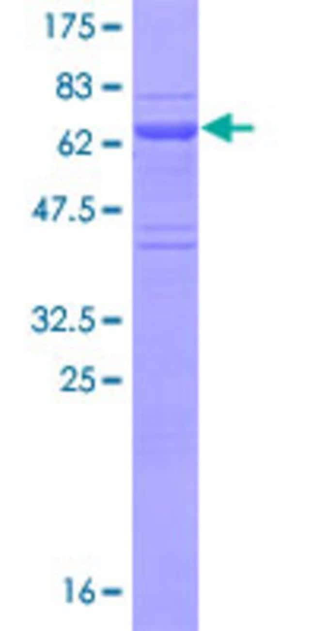 Abnova™Human EAF2 Full-length ORF (NP_060926.2, 1 a.a. - 260 a.a.) Recombinant Protein with GST-tag at N-terminal 25μg Abnova™Human EAF2 Full-length ORF (NP_060926.2, 1 a.a. - 260 a.a.) Recombinant Protein with GST-tag at N-terminal