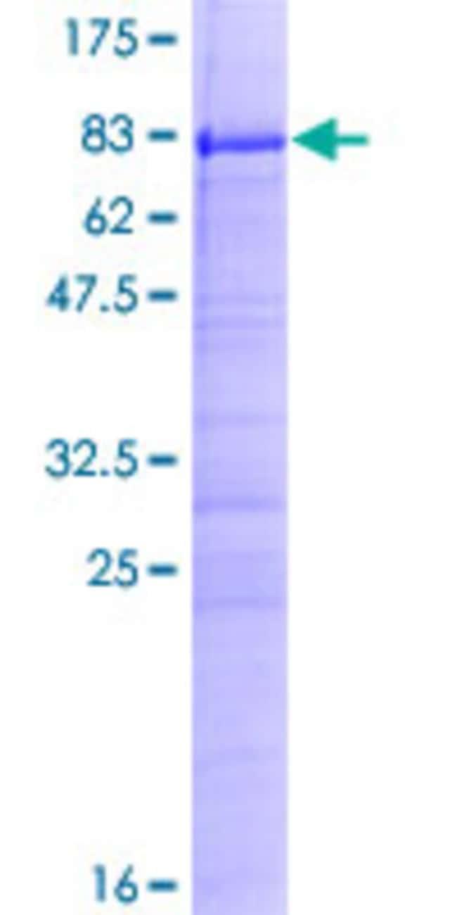 AbnovaHuman ZC3H15 Full-length ORF (AAH21102.1, 1 a.a. - 426 a.a.) Recombinant