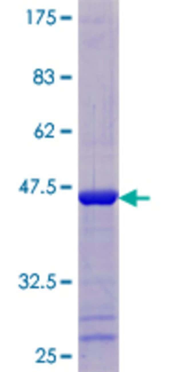 AbnovaHuman THEM2 Full-length ORF (NP_060943.1, 1 a.a. - 140 a.a.) Recombinant