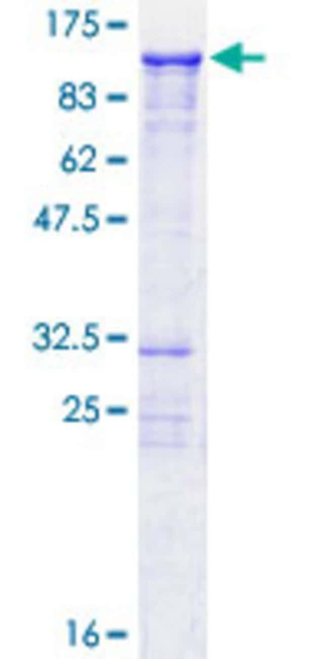 AbnovaHuman C20orf19 Full-length ORF (AAH45826.1, 1 a.a. - 570 a.a.) Recombinant
