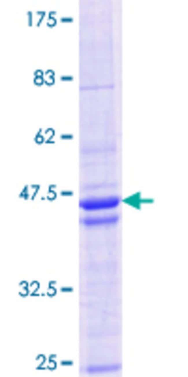 AbnovaHuman HDAC8 Partial ORF (NP_060956.1, 1 a.a. - 100 a.a.) Recombinant