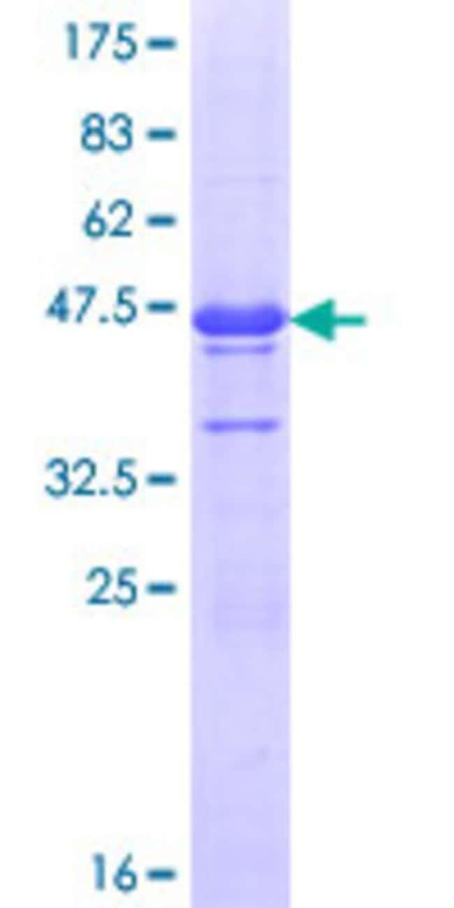 AbnovaHuman ASH1L Partial ORF (NP_060959.1, 2859 a.a. - 2967 a.a.) Recombinant
