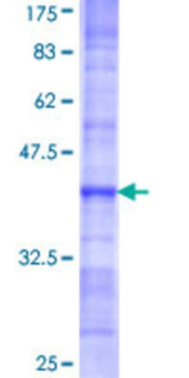 AbnovaHuman PBK Partial ORF (AAH15191, 1 a.a. - 110 a.a.) Recombinant Protein