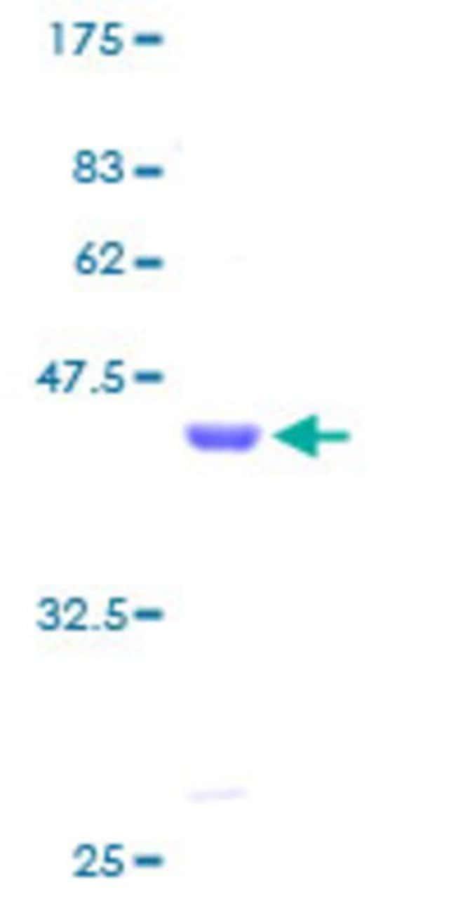 AbnovaHuman LMO3 Full-length ORF (AAH26311, 1 a.a. - 145 a.a.) Recombinant