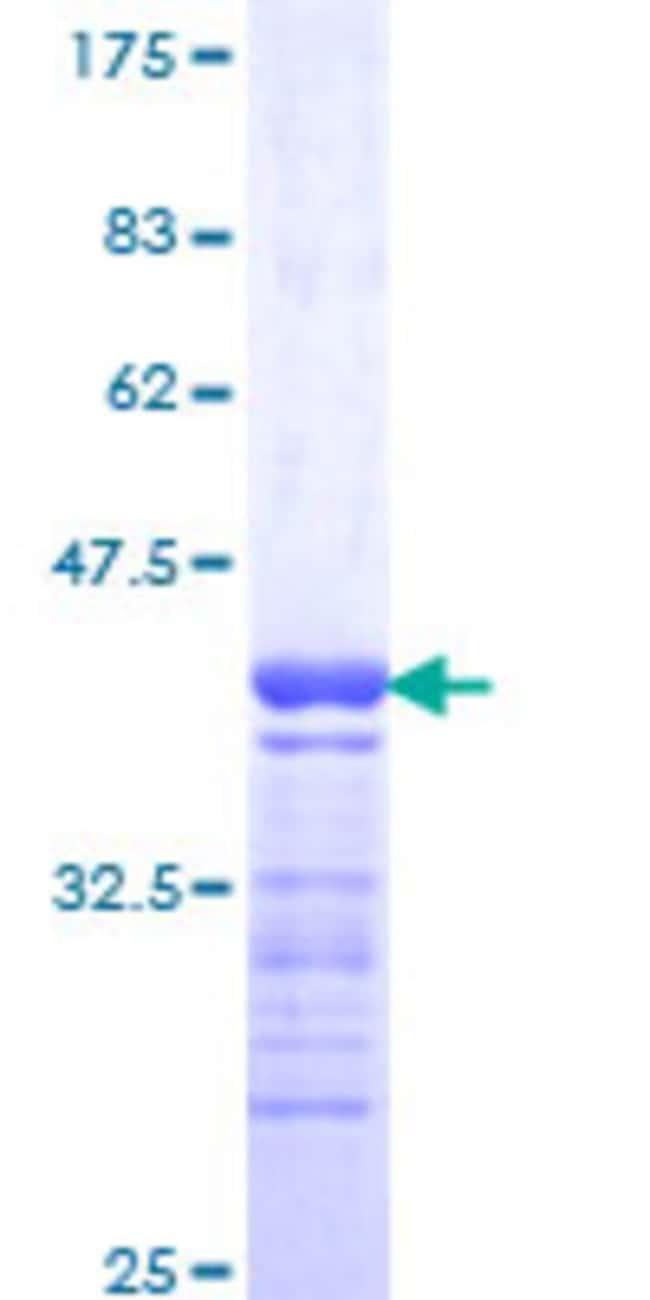 AbnovaHuman GPRC5C Partial ORF (NP_071319, 387 a.a. - 486 a.a.) Recombinant