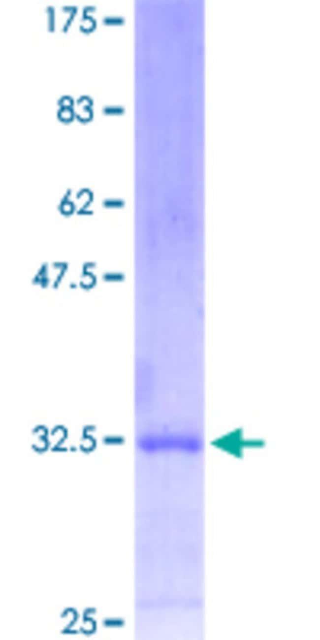 AbnovaHuman MESP1 Partial ORF (NP_061140.1, 1 a.a. - 63 a.a.) Recombinant