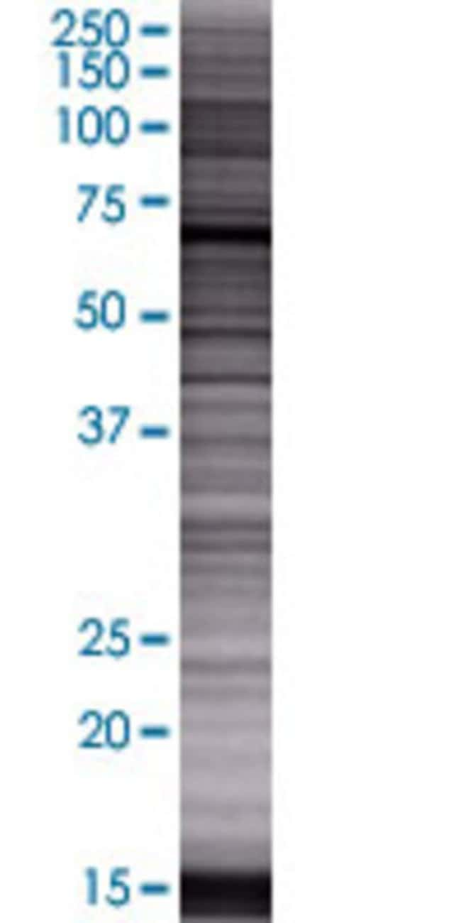AbnovaACSS2 293T Cell Transient Overexpression Lysate (Denatured) 100μL:Protein
