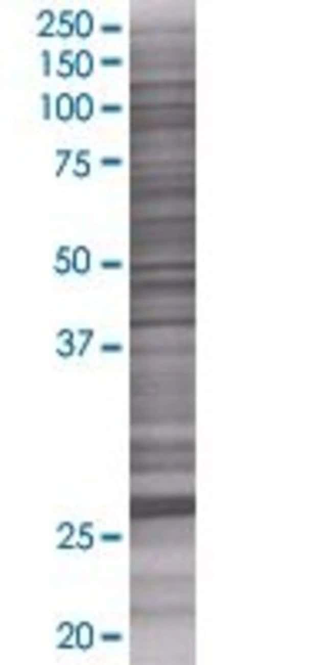 Abnova KIAA1166 293T Cell Transient Overexpression Lysate (Denatured) 100µL:Life