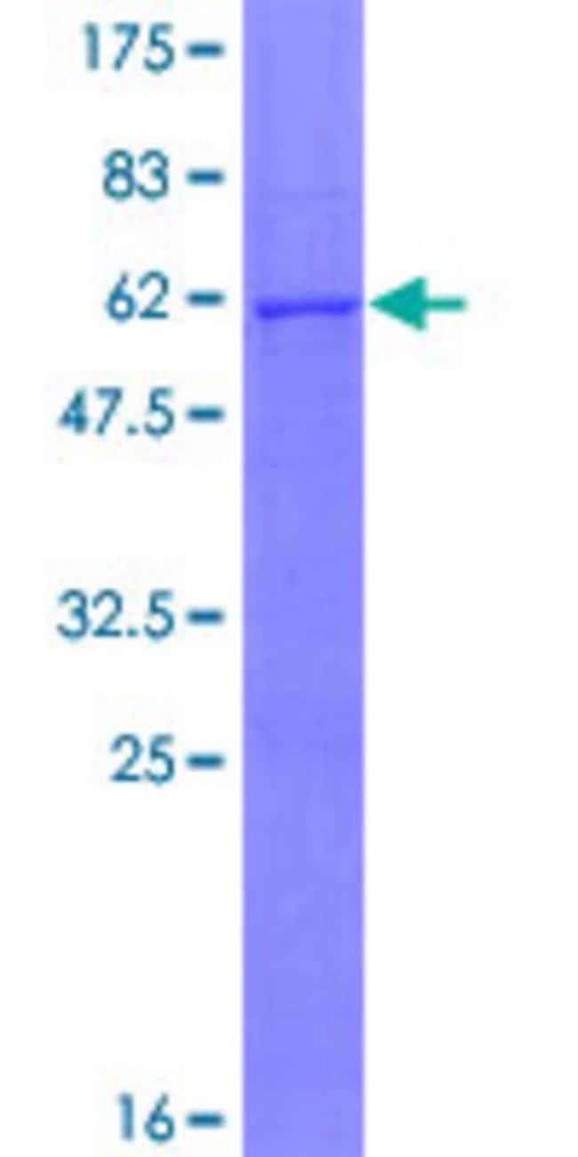 AbnovaHuman CMAS Full-length ORF (AAH16609.1, 1 a.a. - 263 a.a.) Recombinant