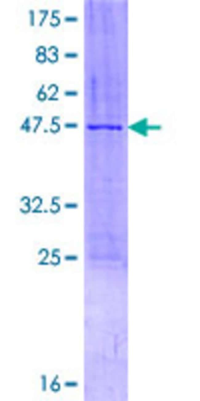 AbnovaHuman ZMAT5 Full-length ORF (NP_001003692.1, 1 a.a. - 170 a.a.) Recombinant