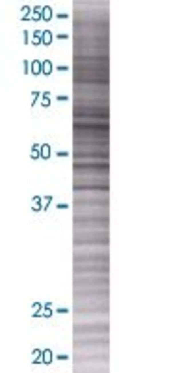 Abnova KLHL9 293T Cell Transient Overexpression Lysate (Denatured) 100µL:Life