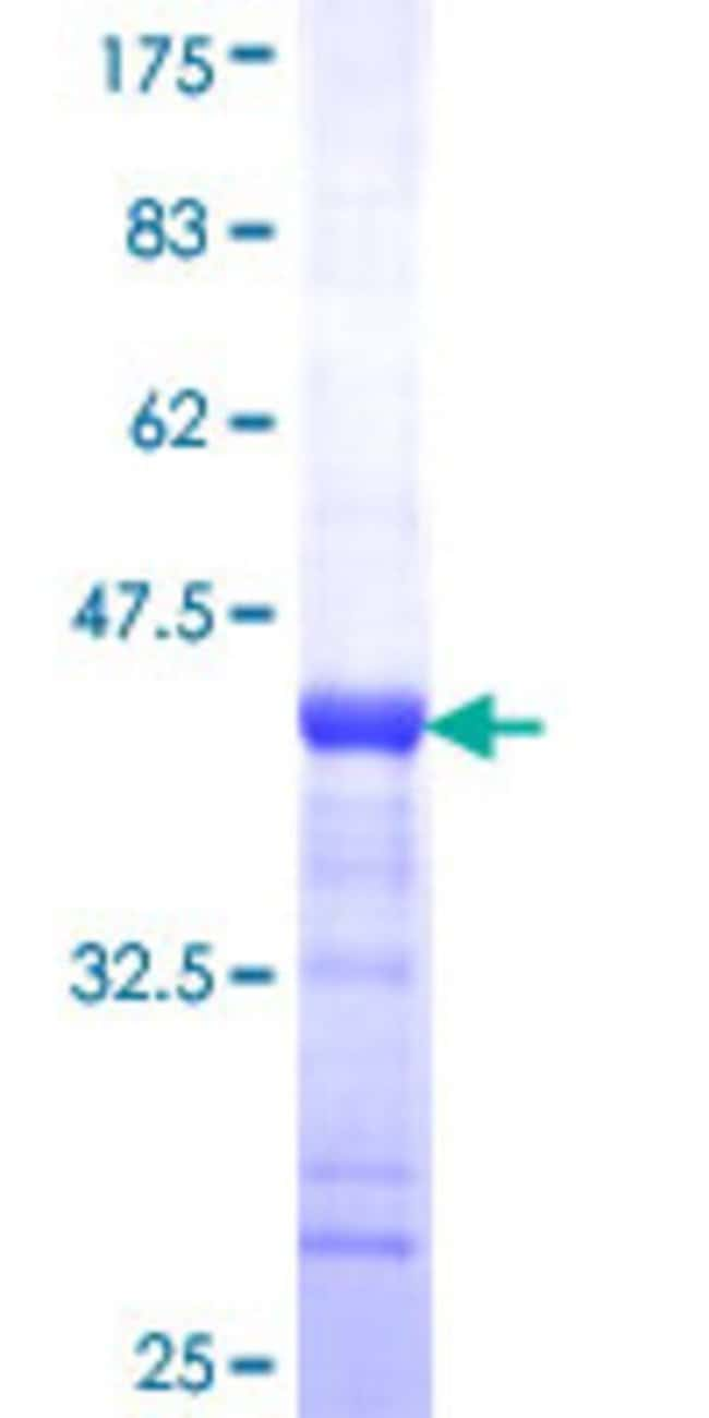 AbnovaHuman BAIAP2L1 Partial ORF (NP_061330, 398 a.a. - 511 a.a.) Recombinant