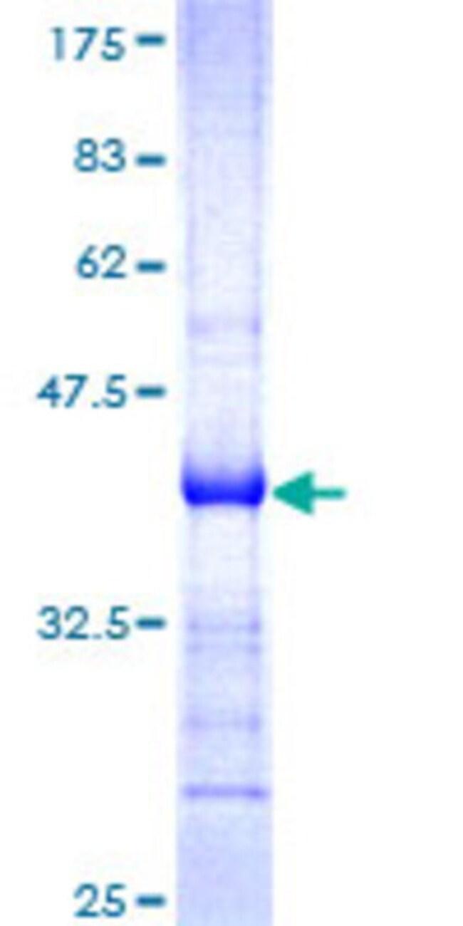 AbnovaHuman PDGFC Partial ORF (NP_057289, 236 a.a. - 345 a.a.) Recombinant
