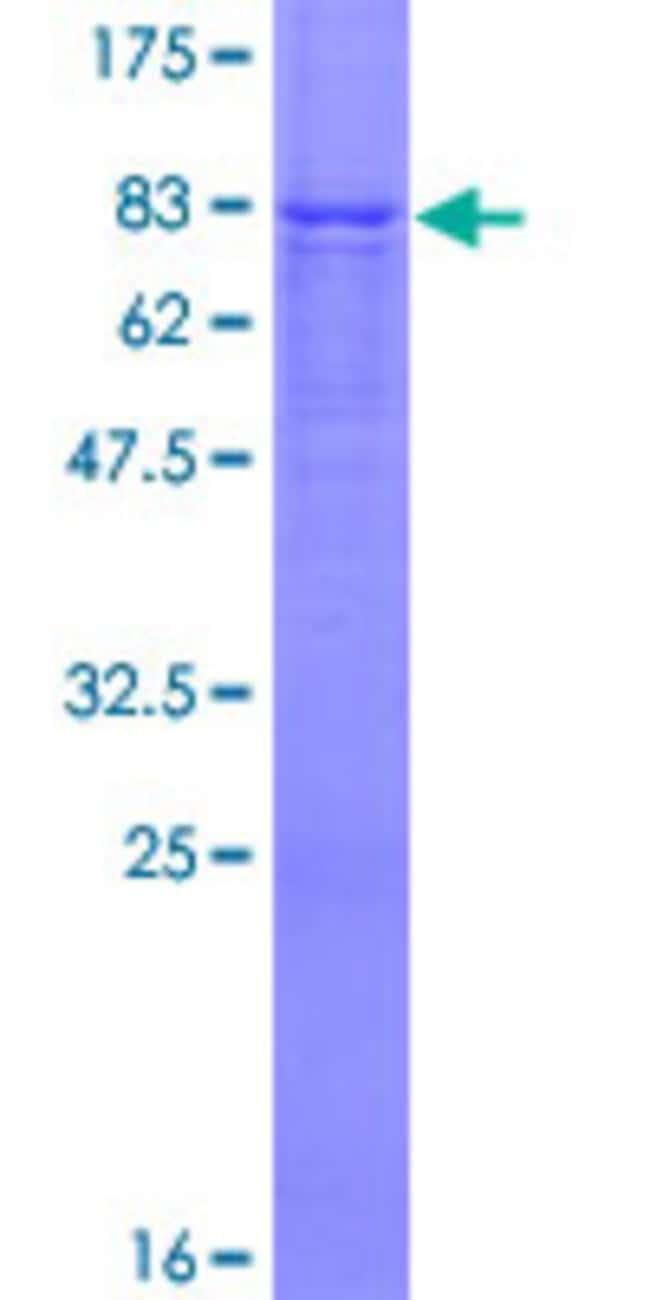 AbnovaHuman ALG1 Full-length ORF (NP_061982.3, 1 a.a. - 464 a.a.) Recombinant