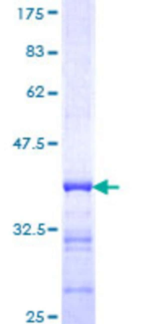 AbnovaHuman PCDHGB7 Partial ORF (NP_061750, 199 a.a. - 291 a.a.) Recombinant