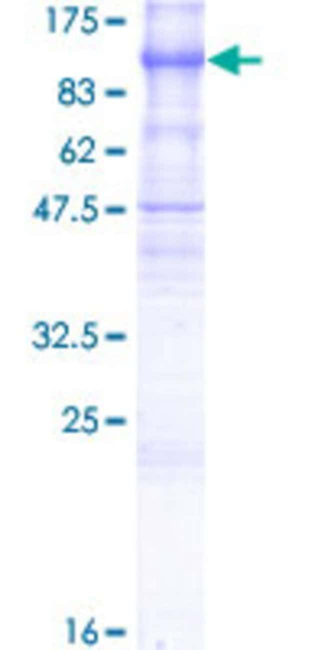 Abnova™Human PCDHGB6 Full-length ORF (NP_115271.1, 1 a.a. - 820 a.a.) Recombinant Protein with GST-tag at N-terminal 25μg Abnova™Human PCDHGB6 Full-length ORF (NP_115271.1, 1 a.a. - 820 a.a.) Recombinant Protein with GST-tag at N-terminal