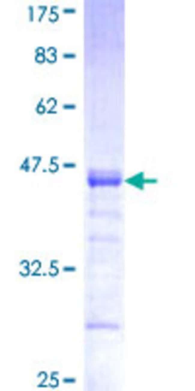 AbnovaHuman PCDHGB1 Partial ORF (NP_061745, 288 a.a. - 387 a.a.) Recombinant