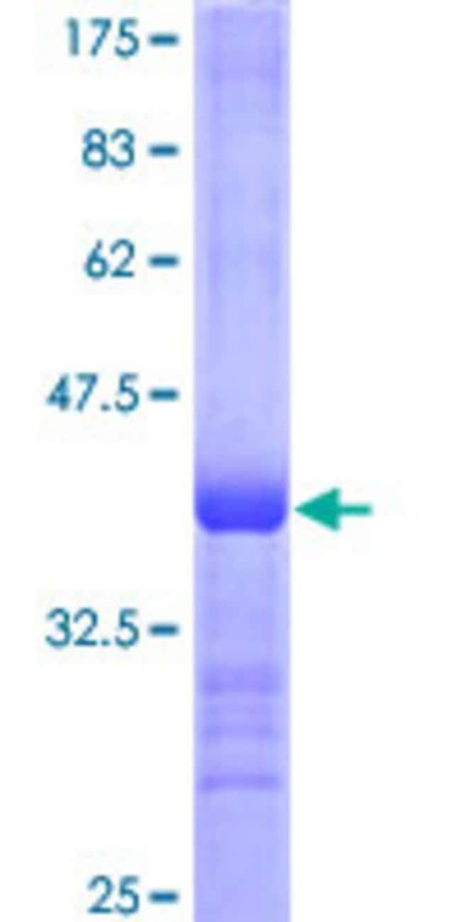 AbnovaHuman PCDHGA7 Partial ORF (NP_061743, 347 a.a. - 441 a.a.) Recombinant