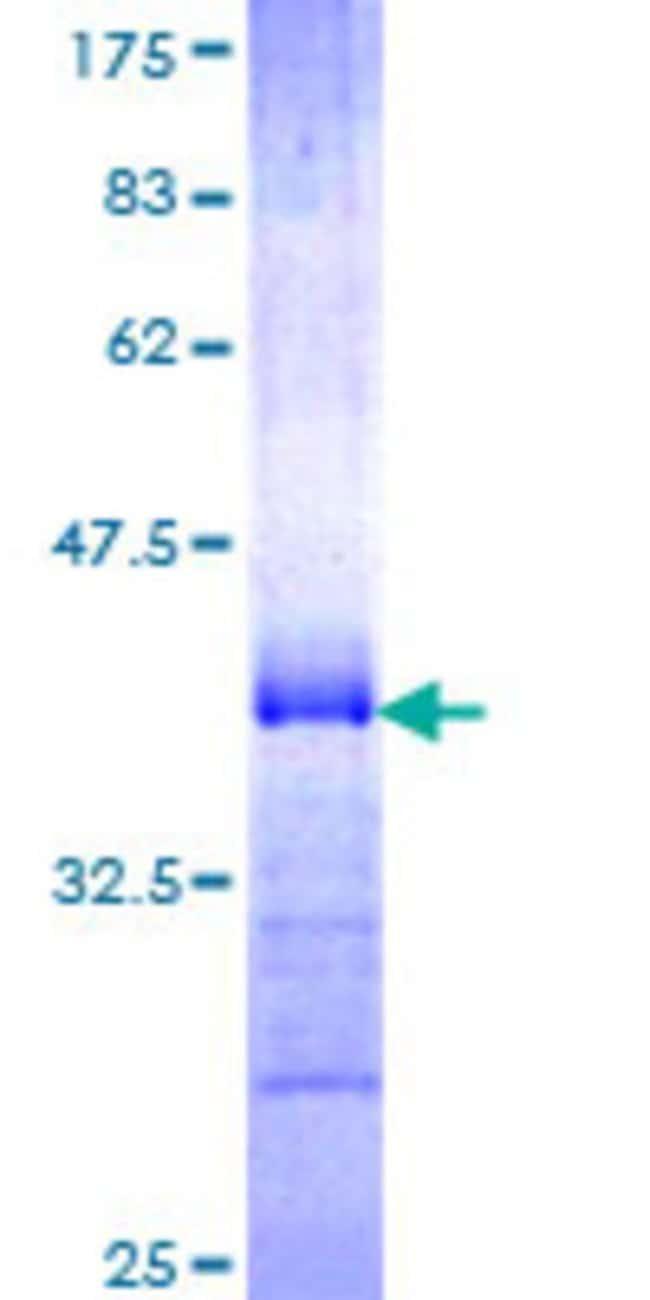 AbnovaHuman PCDHGA5 Partial ORF (NP_061741, 205 a.a. - 304 a.a.) Recombinant
