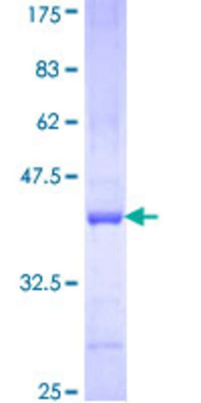 Abnova™Human PCDHB15 Partial ORF (NP_061758, 207 a.a. - 306 a.a.) Recombinant Protein with GST-tag at N-terminal 25μg Abnova™Human PCDHB15 Partial ORF (NP_061758, 207 a.a. - 306 a.a.) Recombinant Protein with GST-tag at N-terminal